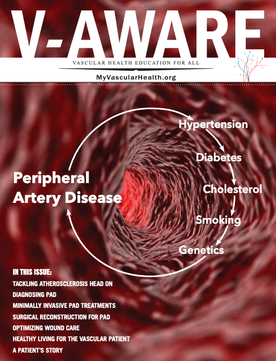 Peripheral artery disease magazine download