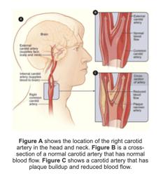 Carotid Artery Disease The Cardio Vascular Care Group