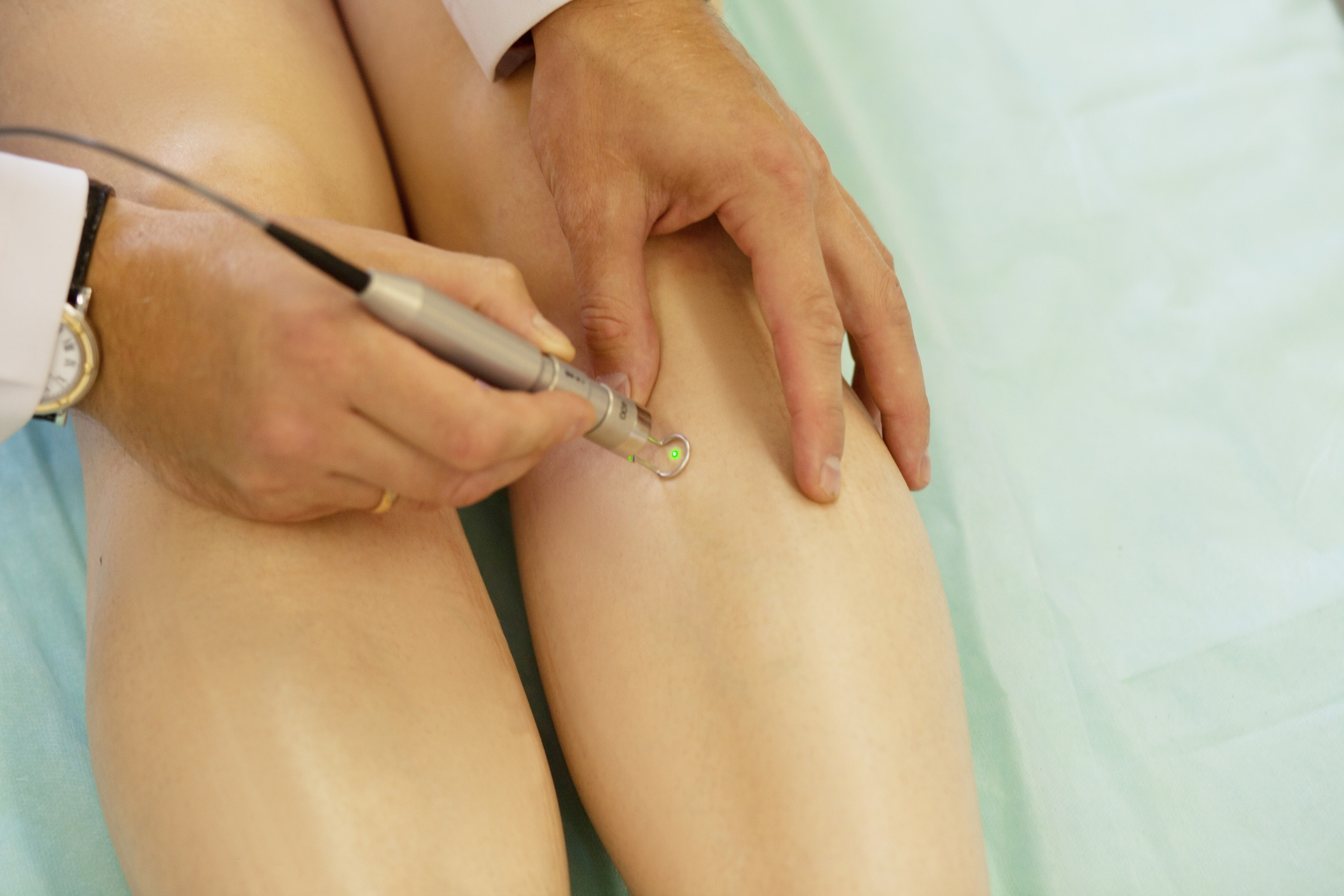 Laser Therapy for Spider Veins