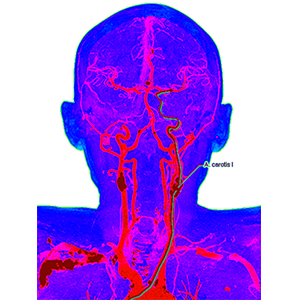 Carotid Artery Stenosis: What You Should Know