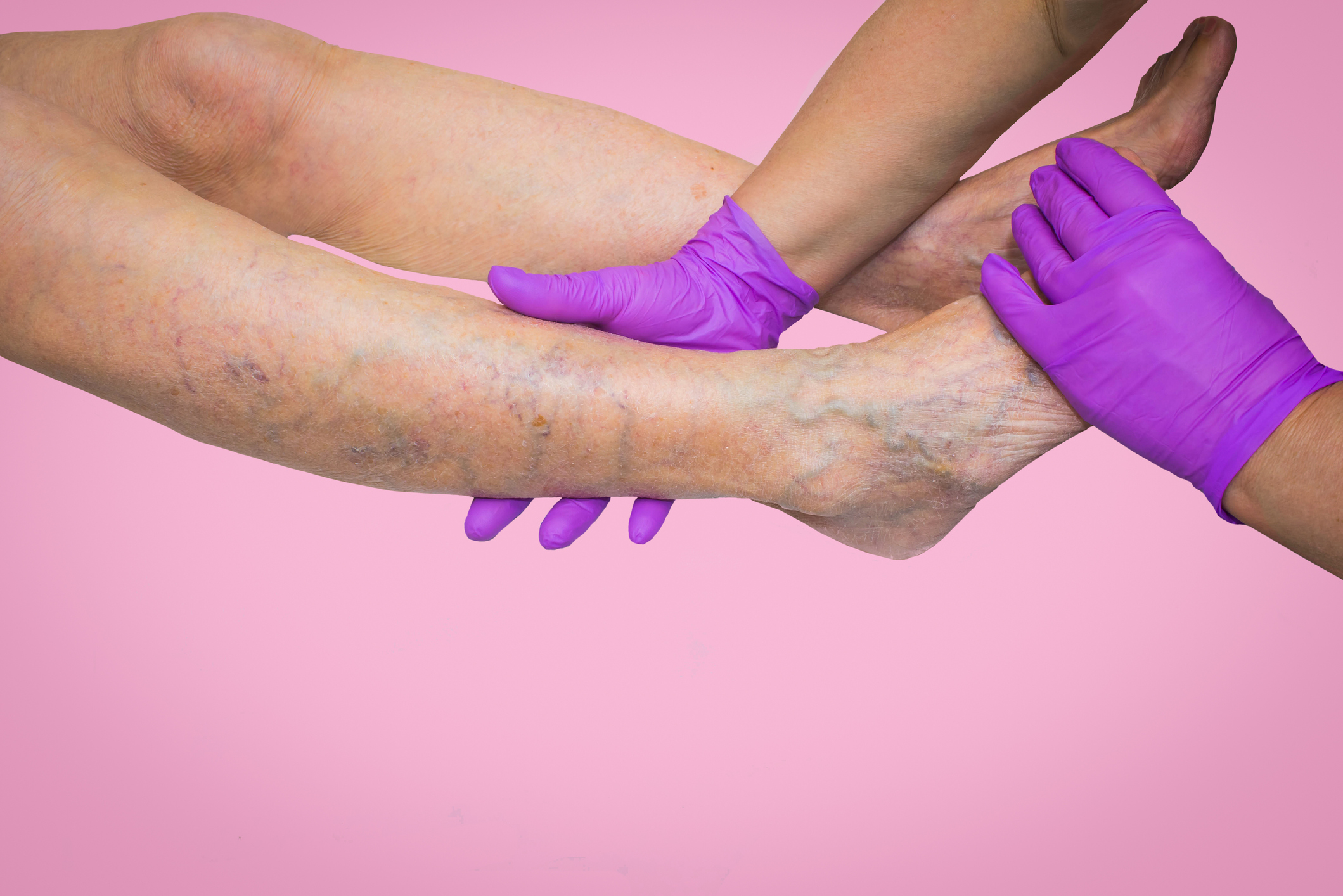 What is Chronic Venous Insufficiency?