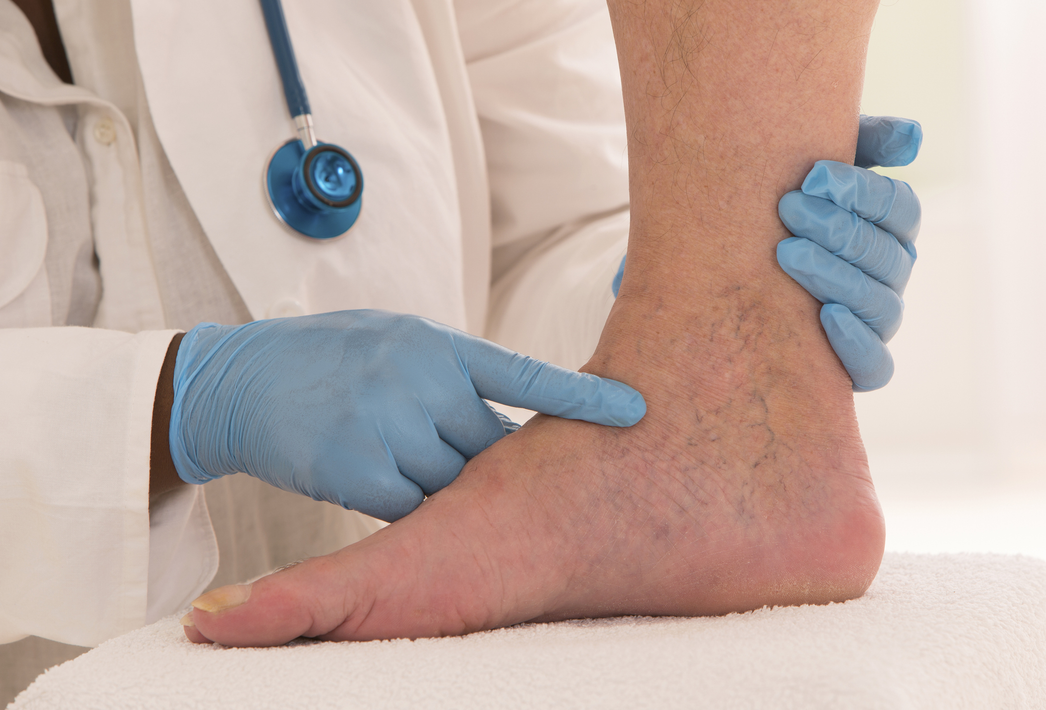 Cosmetic_Spider Veins_Vein Institute of NJ