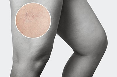 9 Common FAQs for Spider Veins and Sclerotherapy