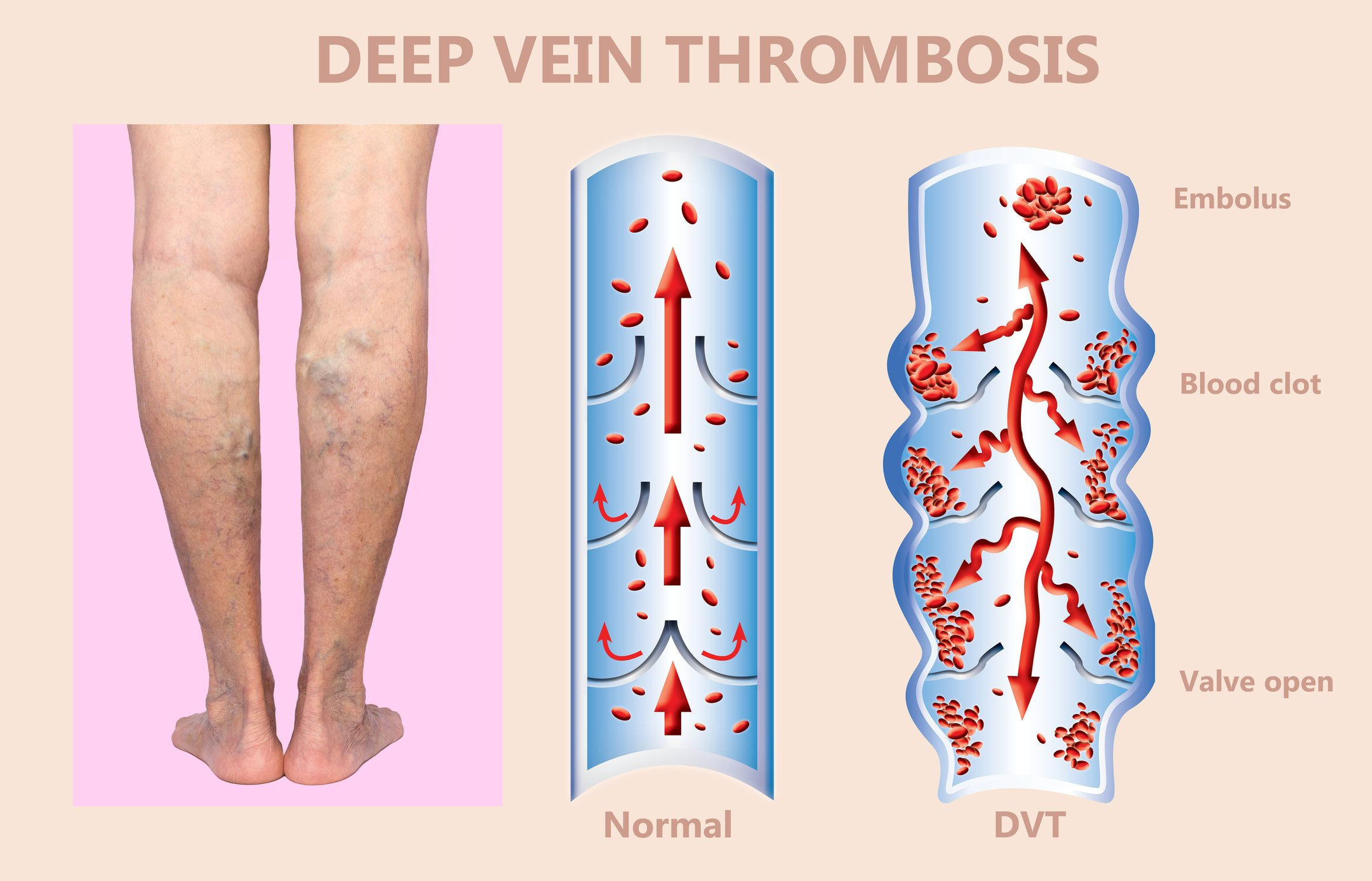 March is Deep Vein Thrombosis Awareness Month - FAQs on DVT