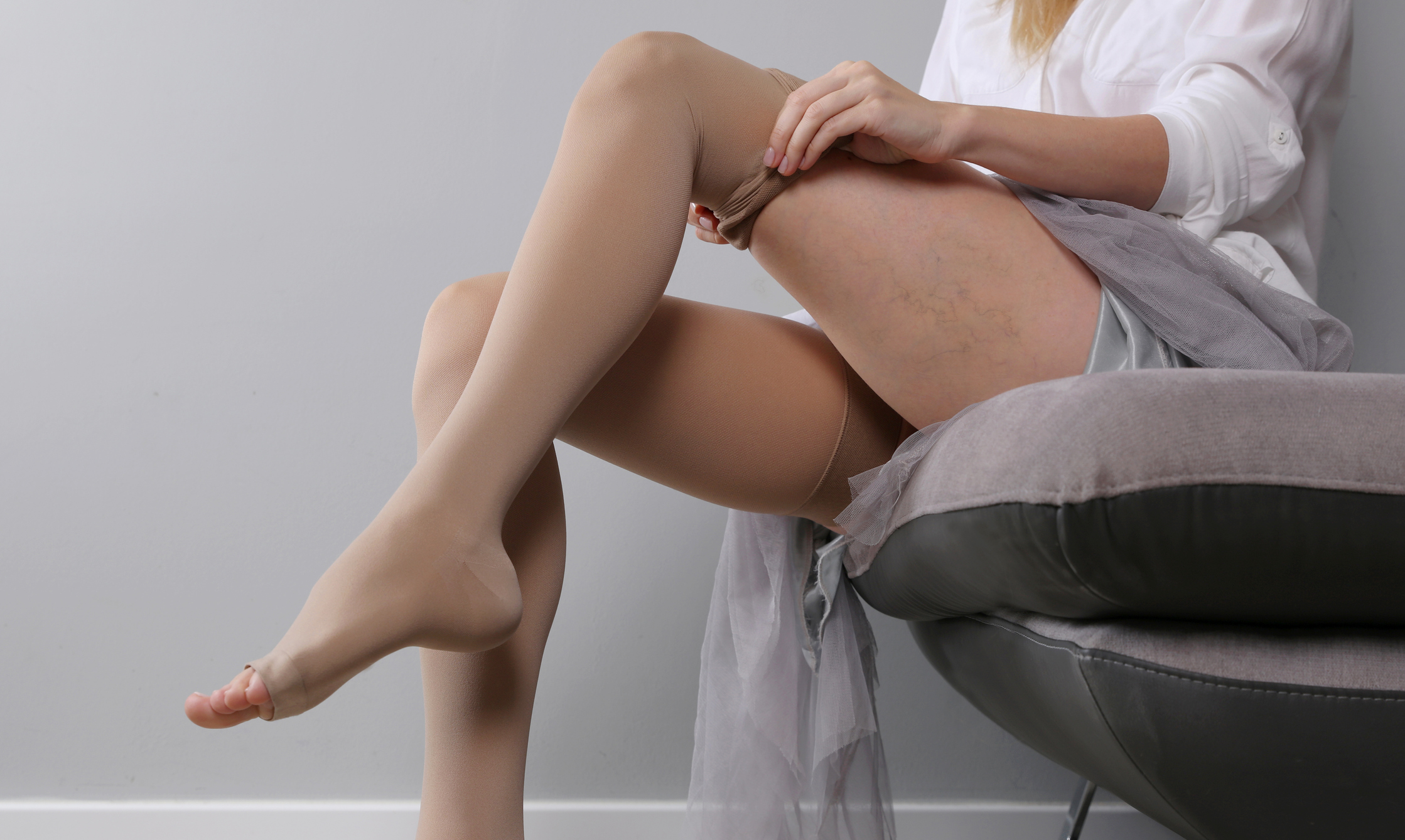 Is sclerotherapy treatment permanent?
