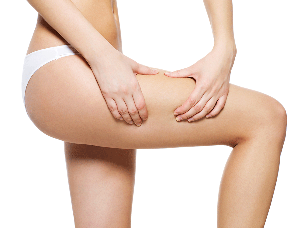 Do You Know the Difference Between Varicose, Spider, and Reticular Veins?