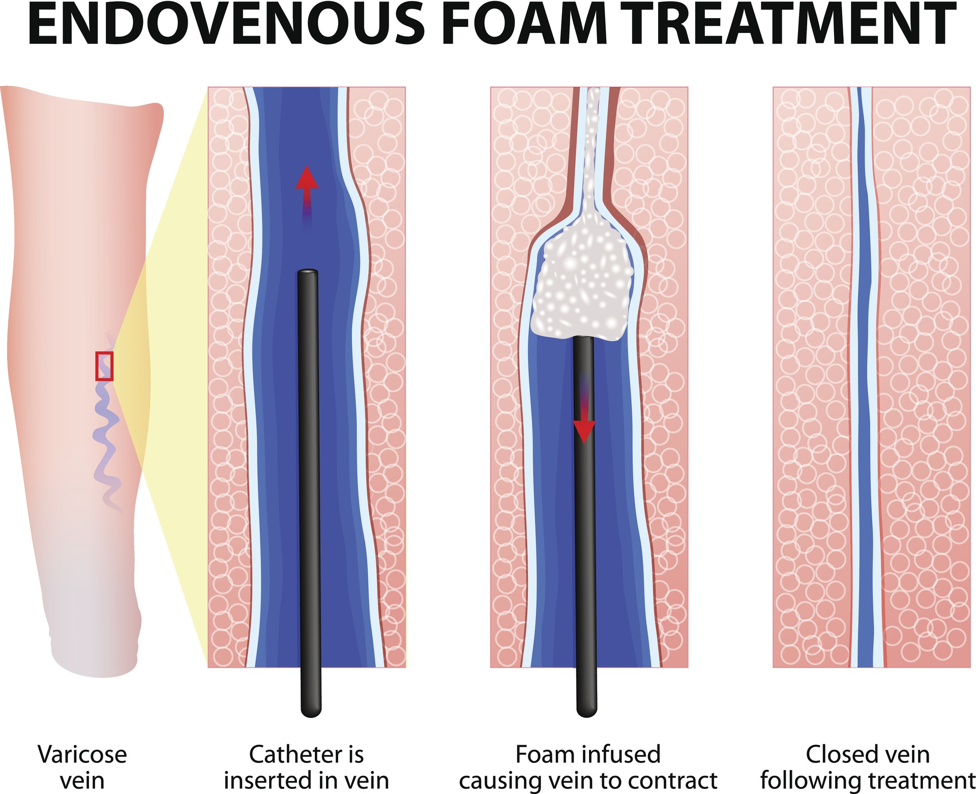 Foam Sclerotherapy - A Vein Treatment Option