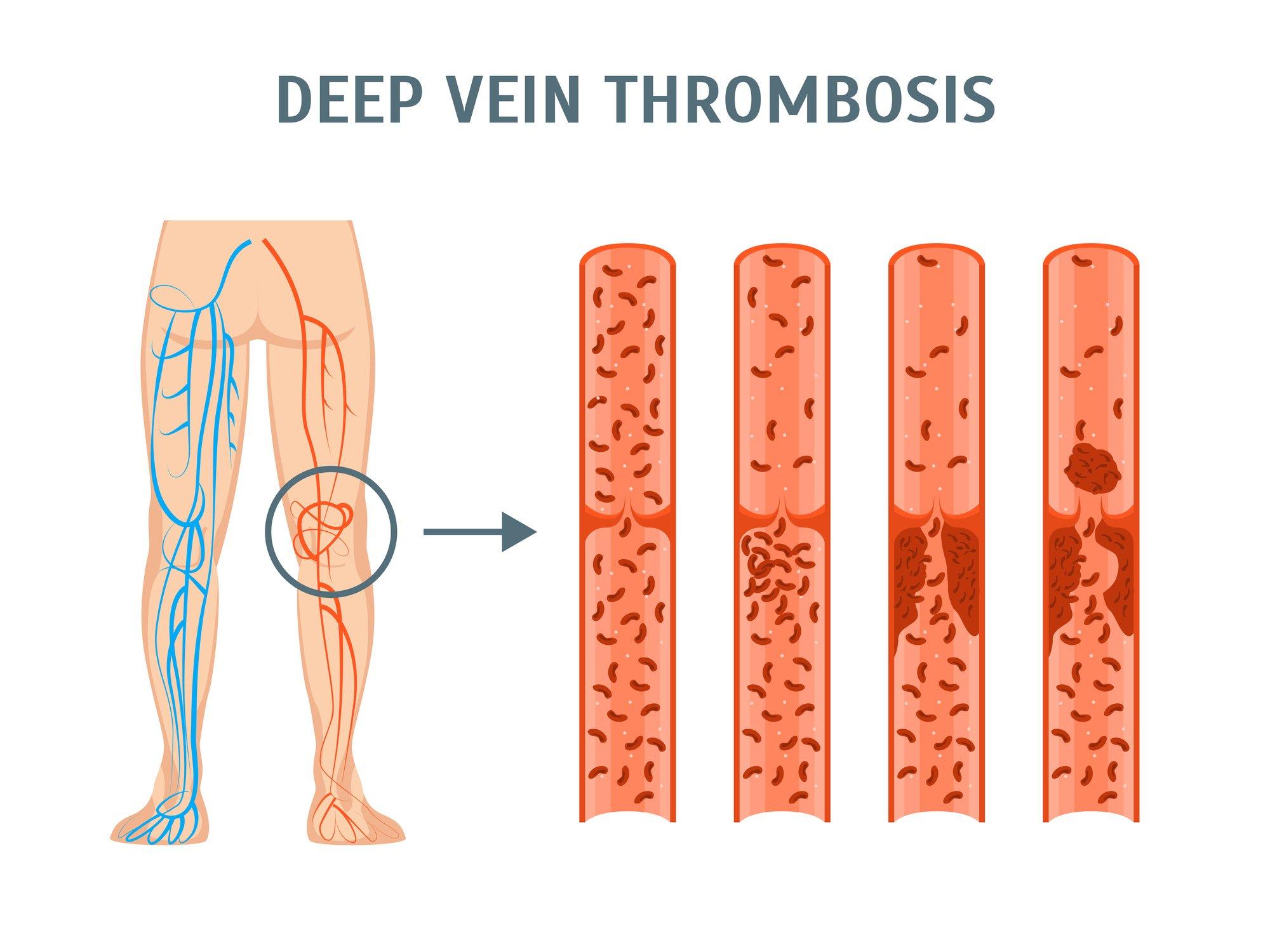 Deep Vein Thrombosis (DVT) – Awareness Matters